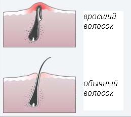 врастание волос